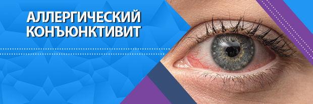 Аллергический конъюнктивит | классификация | симптомы | профилактика | лечение