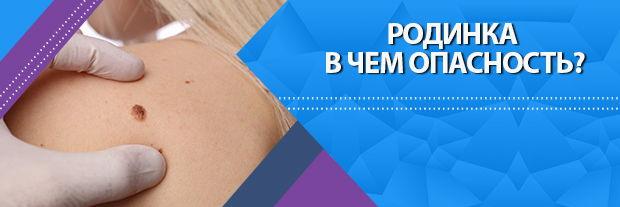 Родинка в чем опасность? Клиника Мир Здоровья СПб