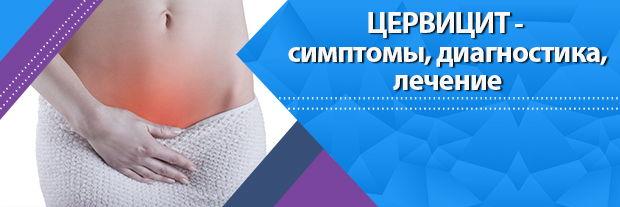 Цервицит - симптомы, диагностика, лечение, профилактика | Статьи | Мир Здоровья СПб