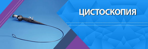 Цистоскопия в МЦ Мир Здоровья Санкт-Петербург
