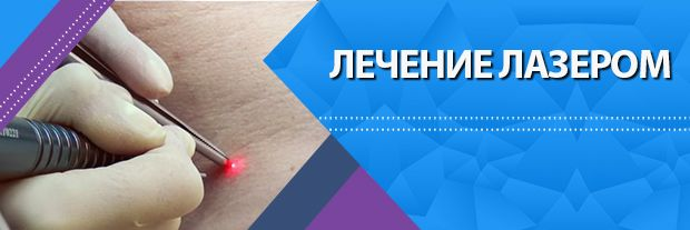 Лечение лазером в МЦ Мир Здоровья СПб