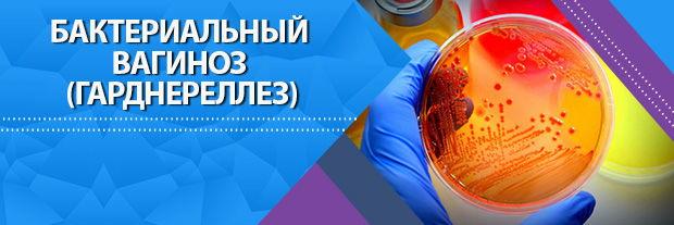 Бактериальный вагиноз | Клиника Мир Здоровья СПб